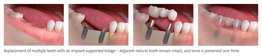 StraumannR Tooth Replacement Solutions